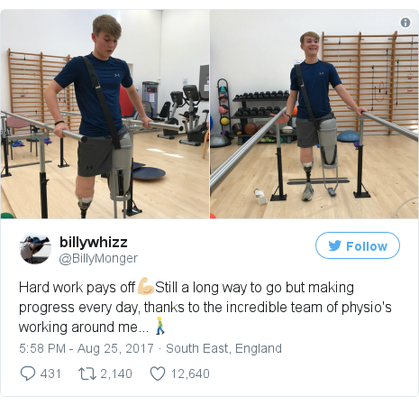 Twitter post by @BillyMonger: Hard work pays off💪🏼Still a long way to go but making progress every day, thanks to the incredible team of physio's working around me...🚶🏼 pic.twitter.com/kWT47HEsP6