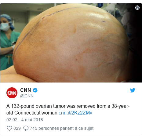 Twitter publication par @CNN: A 132-pound ovarian tumor was removed from a 38-year-old Connecticut woman