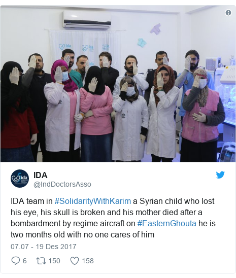 Twitter pesan oleh @IndDoctorsAsso: IDA team in #SolidarityWithKarim a Syrian child who lost his eye, his skull is broken and his mother died after a bombardment by regime aircraft on #EasternGhouta he is two months old with no one cares of him