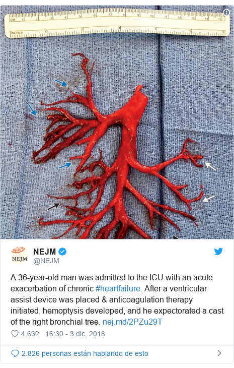Publicación de Twitter por @NEJM: A 36-year-old man was admitted to the ICU with an acute exacerbation of chronic #heartfailure. After a ventricular assist device was placed & anticoagulation therapy initiated, hemoptysis developed, and he expectorated a cast of the right bronchial tree.