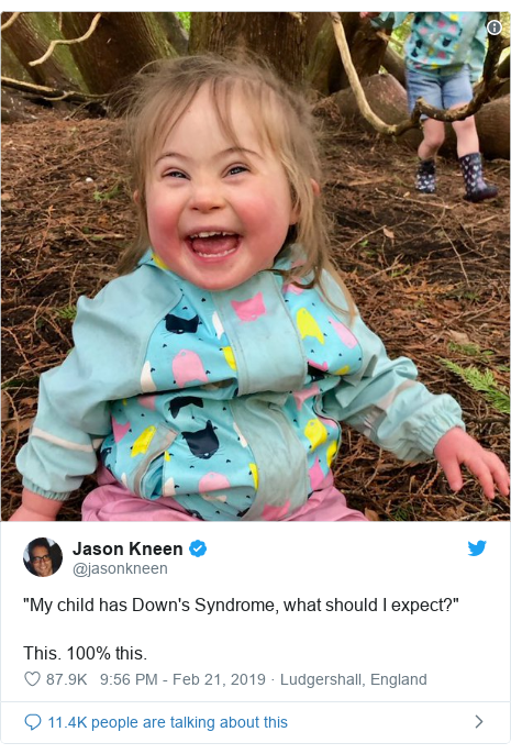 "Twitter post by @jasonkneen: ""My child has Down's Syndrome, what should I expect?""This. 100% this."