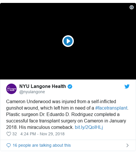 Twitter post by @nyulangone: Cameron Underwood was injured from a self-inflicted gunshot wound, which left him in need of a #facetransplant. Plastic surgeon Dr. Eduardo D. Rodriguez completed a successful face transplant surgery on Cameron in January 2018. His miraculous comeback.