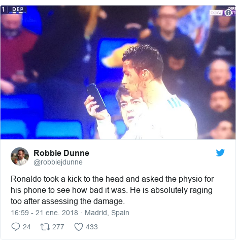 Publicación de Twitter por @robbiejdunne: Ronaldo took a kick to the head and asked the physio for his phone to see how bad it was. He is absolutely raging too after assessing the damage.