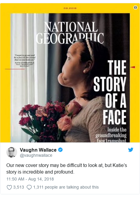 Twitter post by @vaughnwallace: Our new cover story may be difficult to look at, but Katie's story is incredible and profound.