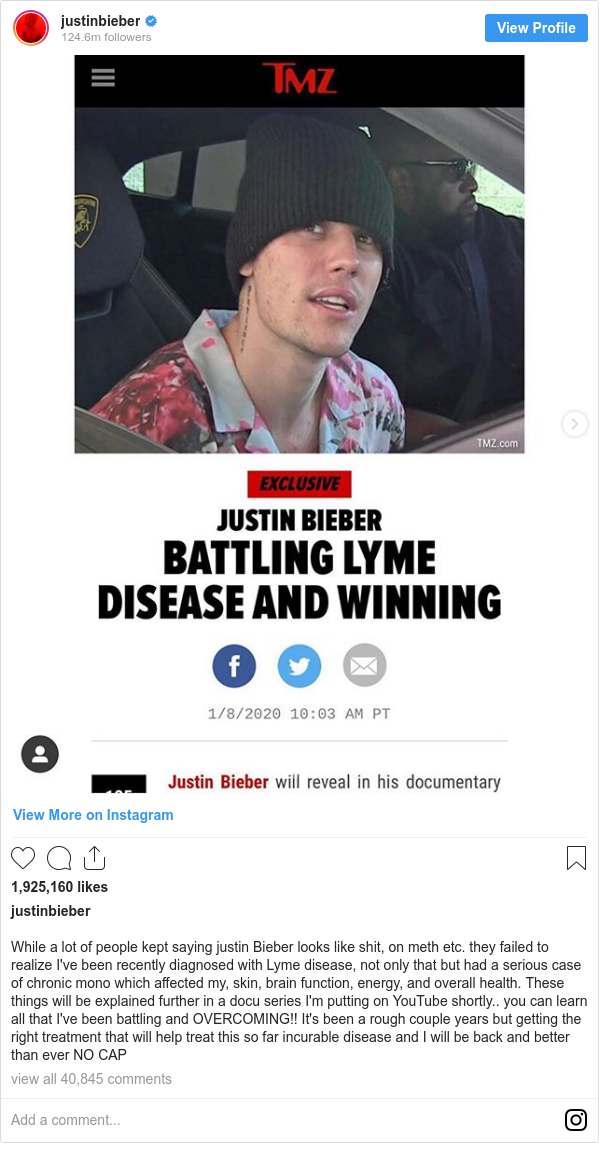 Publicación de Instagram por justinbieber: While a lot of people kept saying justin Bieber looks like shit, on meth etc. they failed to realize I've been recently diagnosed with Lyme disease, not only that but had a serious case of chronic mono which affected my, skin, brain function, energy, and overall health. These things will be explained further in a docu series I'm putting on YouTube shortly.. you can learn all that I've been battling and OVERCOMING!! It's been a rough couple years but getting the right treatment that will help treat this so far incurable disease and I will be back and better than ever NO CAP