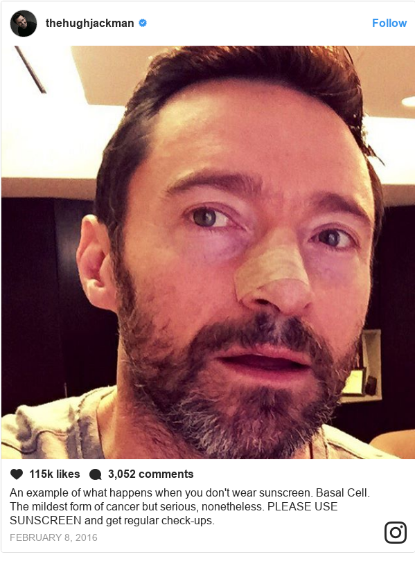 Instagram post by thehughjackman: An example of what happens when you don't wear sunscreen. Basal Cell. The mildest form of cancer but serious, nonetheless.  PLEASE USE SUNSCREEN and get regular check-ups.