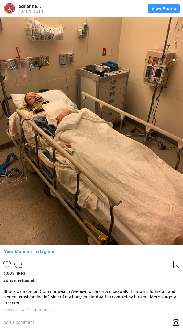 Instagram post by adriannehaslet: Struck by a car on Commonwealth Avenue, while on a crosswalk. Thrown into the air and landed, crushing the left side of my body. Yesterday. I'm completely broken. More surgery to come.
