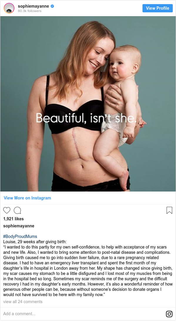"""Instagram допис, автор: sophiemayanne: #BodyProudMums Louise, 29 weeks after giving birth  """"I wanted to do this partly for my own self-confidence, to help with acceptance of my scars and new life. Also, I wanted to bring some attention to post-natal disease and complications. Giving birth caused me to go into sudden liver failure, due to a rare pregnancy related disease. I had to have an emergency liver transplant and spent the first month of my daughter's life in hospital in London away from her. My shape has changed since giving birth, my scar causes my stomach to be a little disfigured and I lost most of my muscles from being in the hospital bed so long. Sometimes my scar reminds me of the surgery and the difficult recovery I had in my daughter's early months. However, it's also a wonderful reminder of how generous other people can be, because without someone's decision to donate organs I would not have survived to be here with my family now."""""""