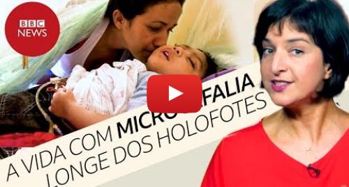 YouTube post de BBC News Brasil: Como vive a 1ª geração de bebês com microcefalia por zika