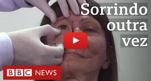 YouTube post de BBC News Brasil: Nova técnica de prótese devolve rosto a brasileira sobrevivente de câncer