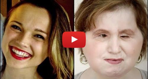 Publicación de Youtube por BBC News Mundo: El increíble trasplante de cara a una adolescente que intentó suicidarse