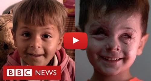 YouTube post de BBC News Brasil: Guerra da Síria  o rosto de um menino que traduz a tragédia