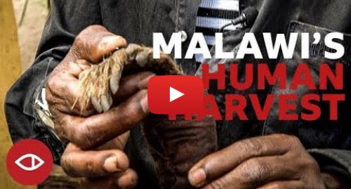 Youtube post by BBC News Africa: Malawi's Human Harvest - Full documentary - BBC Africa Eye