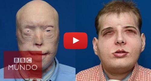 Publicación de Youtube por BBC News Mundo: El trasplante de cara más completo de la historia