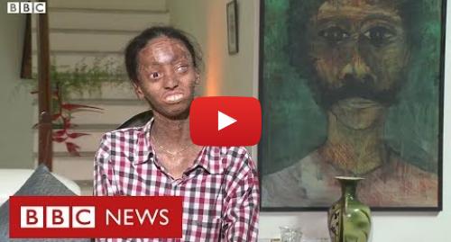YouTube post de BBC News Brasil: 'Minha pele é muito justa para meu corpo'  a vida de uma jovem indiana com doença rara