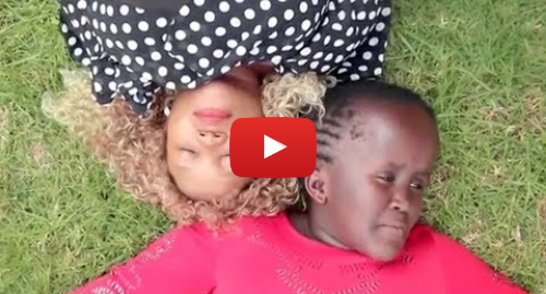 Publicación de Youtube por BBC News Mundo: Cómo niña con hidrocefalia superó el bullying y empezó una carrera musical