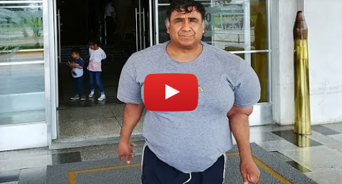 """Publicación de Youtube por BBC News Mundo: El buzo peruano que tiene el cuerpo """"inflado"""" desde hace 4 años"""