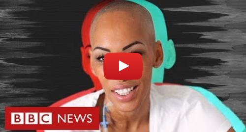 YouTube post de BBC News Brasil: O drama da mulher em uma busca mundial por doador de células-tronco