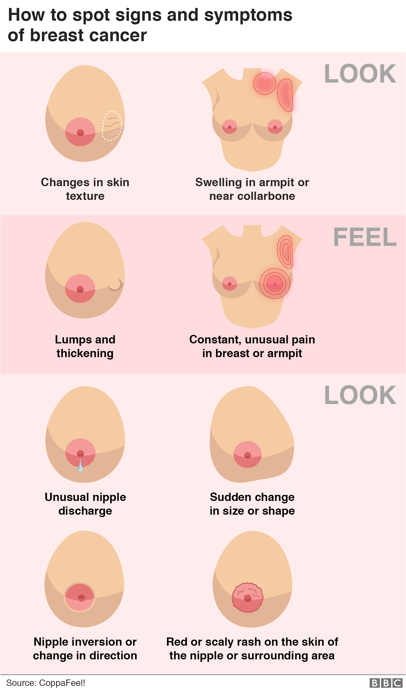 Graphic showing how to spot the signs and symptoms of breast cancer