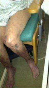 patient with purple legs from DVT