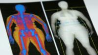 DEXA scan results show body fat