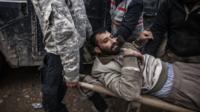 A wounded Iraqi man in Mosul, Iraq. 1 Dec. 2016.