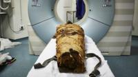 The mummified remains of Nesyamun being scanned in a hospital in Leeds