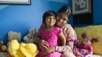 This undated handout photo released on 28 April 2017 by the Children First Foundation shows three-year-old Choity Khatun (L) with her mother Shima (R) in hospital in Melbourne after she had life-saving reconstructive surgery
