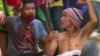 Injured protesters in the Philippines