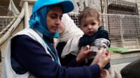 A UNICEF employee measuring the arm of a malnourished child in the besieged Syrian town of Madaya