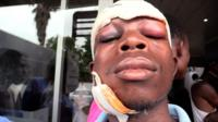 An alleged victim of security forces crackdown in Zimbabwe