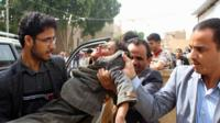 Wounded boy in Yemen