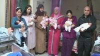 Four sets of twins held at hospital in Israel