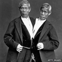 Adult siamese twins picutres