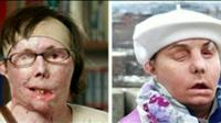 Carmel Blandin Tarleton, before and after the transplant
