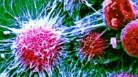 Kidney cancer cells