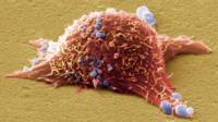 Cultured melanoma skin cancer