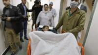 Injured child caught in Kabul suicide bombing