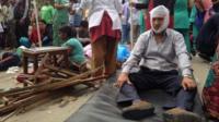 Injured man in Kathmandu