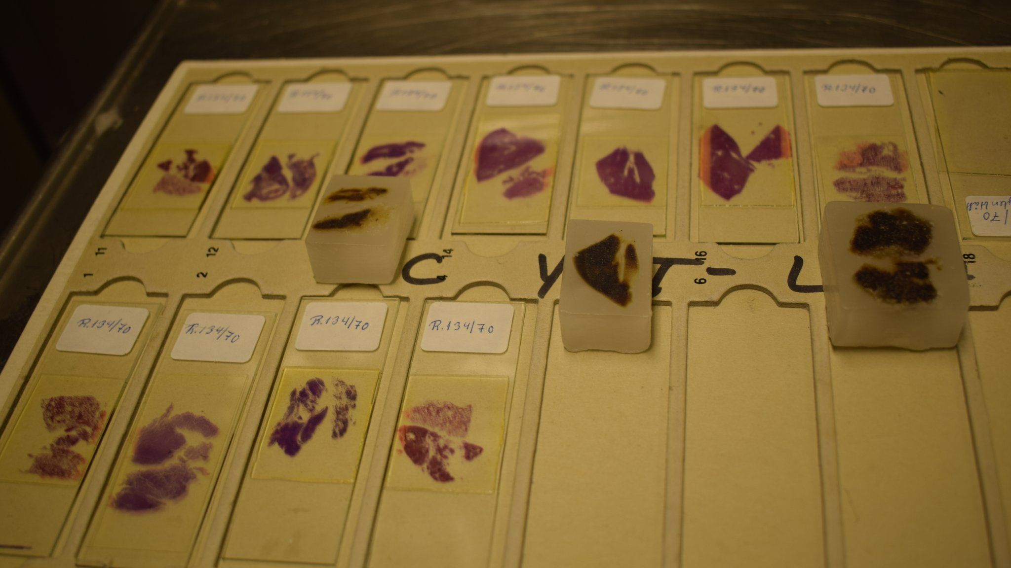 Glass slides and paraffin blocks containing tissue samples from the Isdal Woman's organs