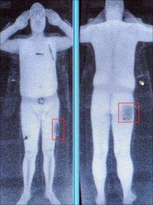 A computer screen showing the results of a full body scan