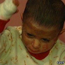 Natalka Kudrikova was severely burned in an arson attack, Czech Republic