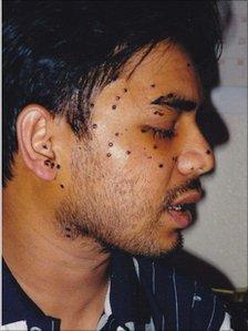 Rais Bhuiyan after the attack