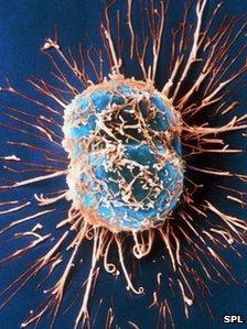 Cell canser cerfigol