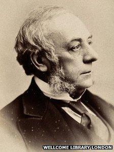 Sir John Erichsen