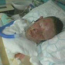 Will Reynolds in hospital