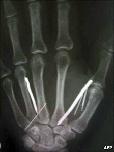 Detail of an X-ray film showing nails in hand of Sri Lankan housemaid