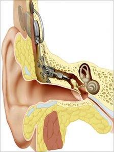 Otologics Carina middle ear implant device