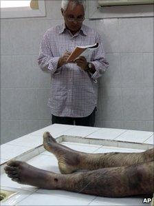 An observer from Human Rights Watch takes notes as the body of Ali Issa Saqer is washed for burial, 10 April