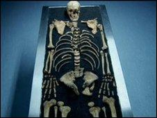 Knight's skeleton